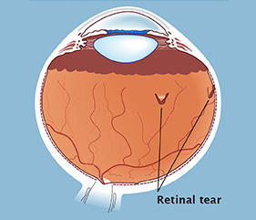 A retinal tear occurs when the vitreous gel collapses and pulls away from the front surface of the retina.